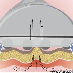 Urządzenie masaż endodermiczny podciśnieniowy (5907589354539) - ogłoszenia A6.pl